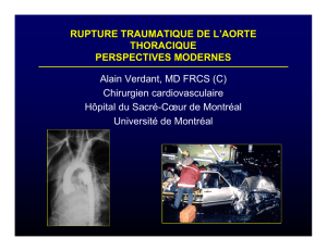 RUPTURE TRAUMATIQUE DE L`AORTE THORACIQUE