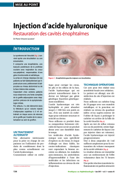 injection d`acide hyaluronique