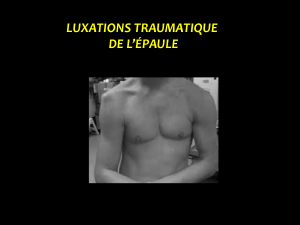 Luxation traumatique de l`épaule