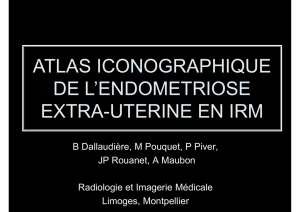 ATLAS ICONOGRAPHIQUE DE L`ENDOMETRIOSE EXTRA