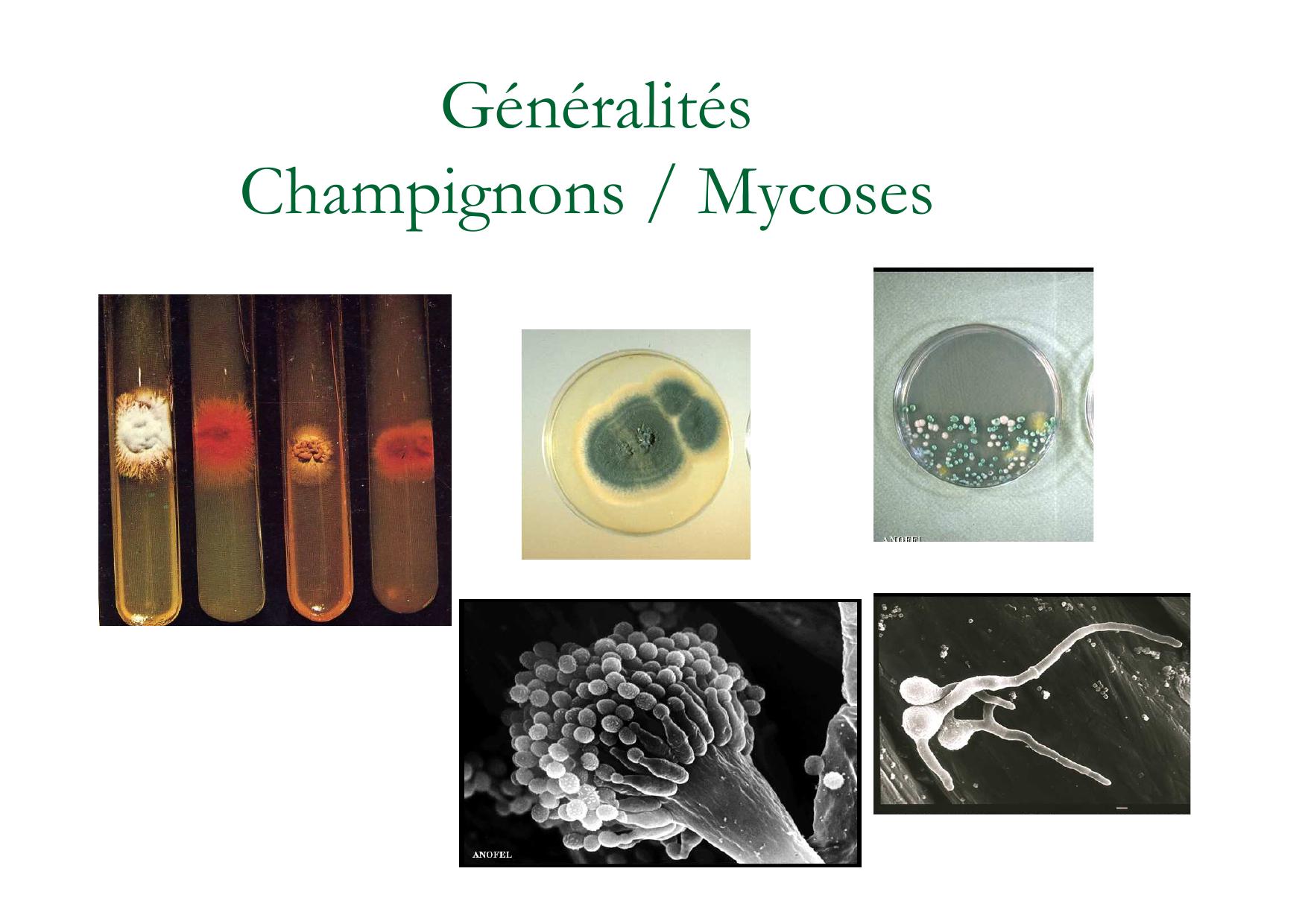 Généralités Champignons / Mycoses