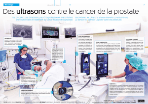 Des ultrasons contre le cancer de la prostate