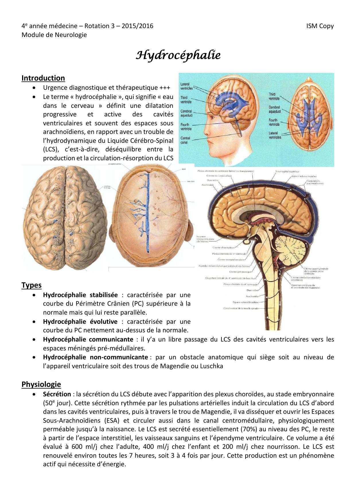 Hydrocéphalie Introduction