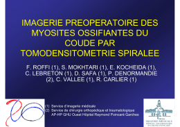 IMAGERIE PREOPERATOIRE DES MYOSITES OSSIFIANTES DU COUDE PAR TOMODENSITOMETRIE SPIRALEE