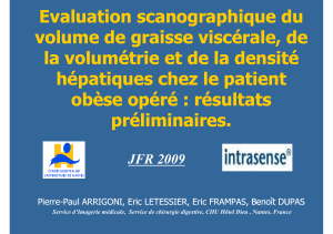 Evaluation scanographique du volume de graisse viscérale, de