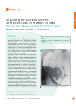 Un cancer de l'intestin grêle synchrone I