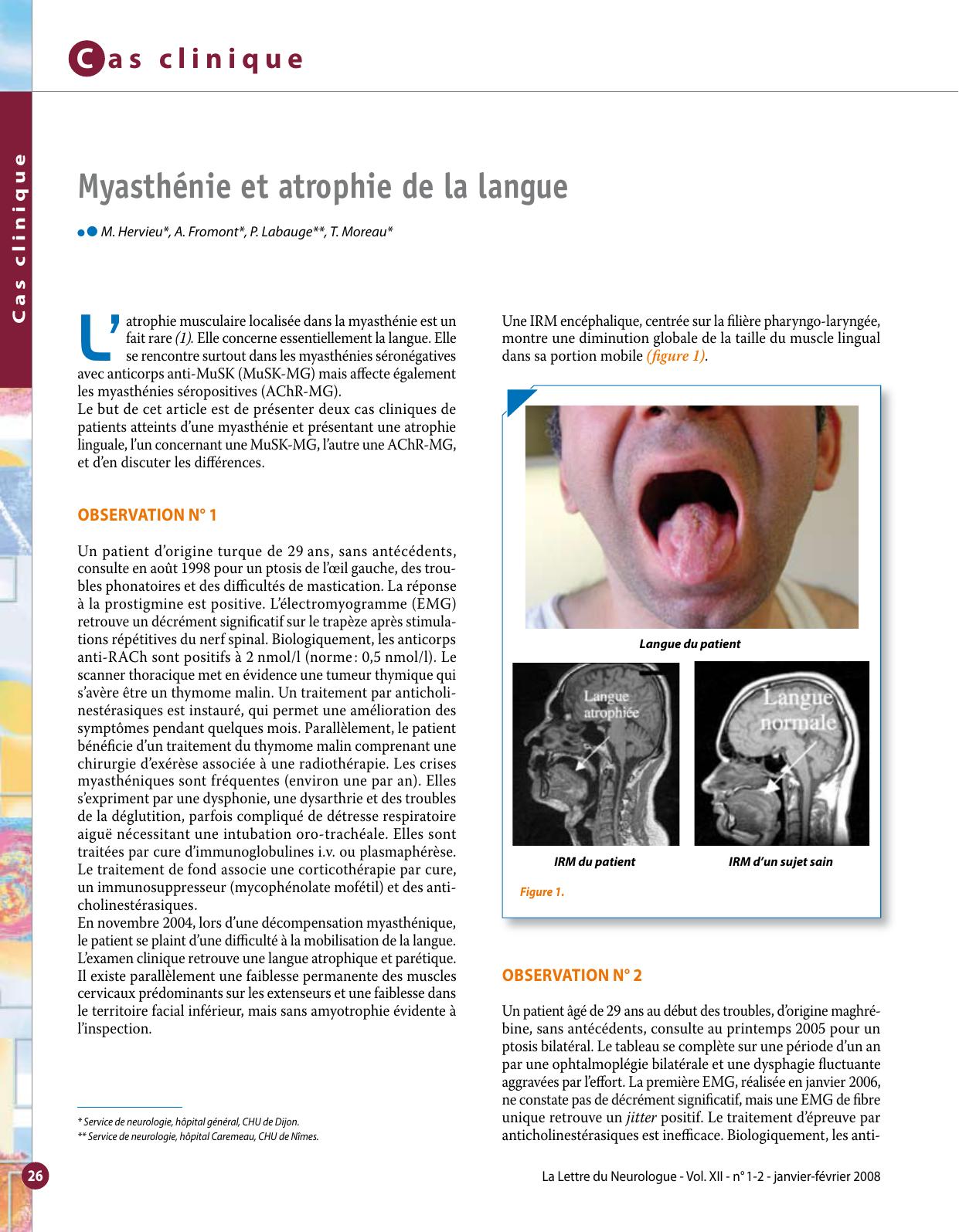 L' Myasthénie et atrophie de la langue c
