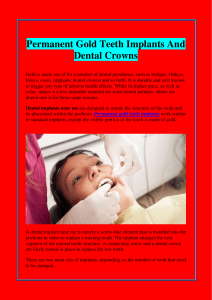 Permanent Gold Teeth Implants And Dental Crowns
