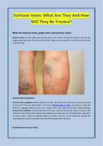 Varicose Veins: What Are They And How Will They Be Treated?