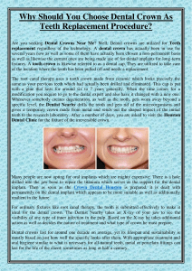 Why Should You Choose Dental Crown As Teeth Replacement Procedure