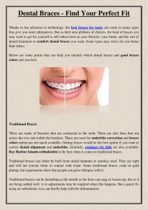 Dental Braces - Find Your Perfect Fit