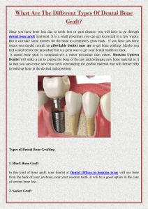 What Are The Different Types Of Dental Bone Graft