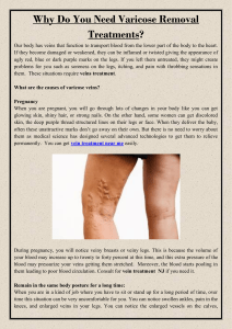 Why Do You Need Varicose Removal Treatments