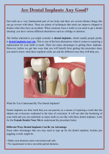 Are Dental Implants Any Good
