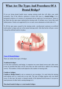 What Are The Types And Procedures Of A Dental Bridge
