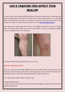 Can a Varicose Vein Affect Your Health