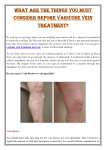 What are the things you must consider before varicose vein treatment