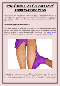 Everything That You Don't Know About Varicose Veins