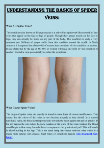Understanding The Basics Of Spider Veins