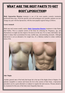 What are the best parts to get Body Liposuction